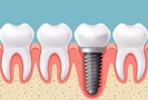 种植牙是怎样种的 南宁天使口腔医院种植牙与镶牙一样吗