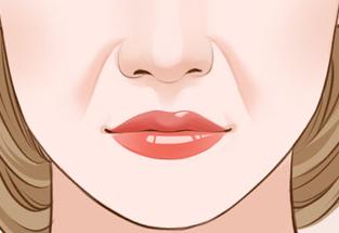 金华第五医院美容科激光祛法令纹 改善你的皮肤老化