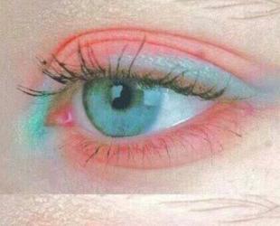 双眼皮修复哪家好 中山大学附属第一医院整形修复科正规吗