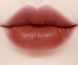 郑州何氏整形医院厚唇修薄的优势 帮你改变香肠嘴