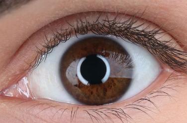 双眼皮修复多久恢复 温州星范整形医院双眼皮修复好吗