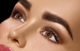 怎么快速消除黑眼圈 大庆志富激光去黑眼圈时间短、效果好