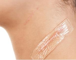 丽水美莱整形医院激光祛疤的适应范围 有啥优势