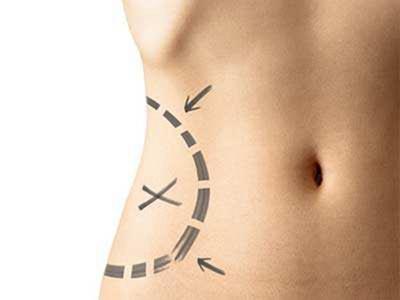 兰州韩美整形腰腹吸脂的价格是多少 快速瘦腰不反弹