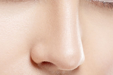 杭州鼻头鼻翼整形哪家好 鼻翼缩小的价格贵吗