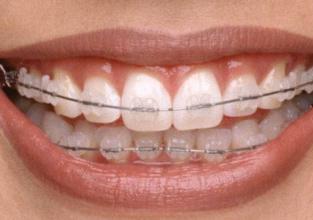 牙齿缺失不用怕 北京嘉和口腔门诊部种植牙拯救你