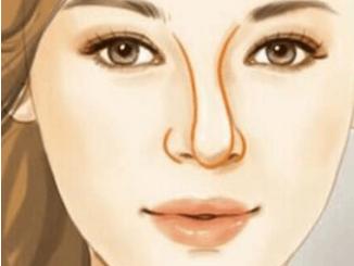 西安歪鼻畸形矫正需要多少钱 摆脱歪鼻 让您拥有自信