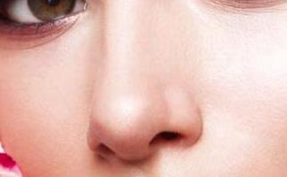 苏州歪鼻梁矫正哪里好 歪鼻手术价格多少