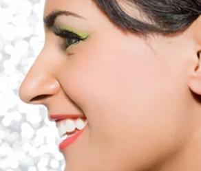 青岛庞东剑整形医院隆鼻失败修复原则 有效改善鼻型