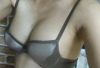 胸下垂应该怎么办 厦门思明欧菲整形医院乳房矫正价格