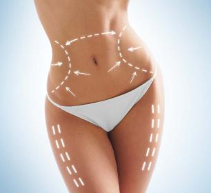 腰腹吸脂后多久能看到瘦身效果 温州吸脂减肥价格贵吗