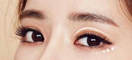 杭州恒颜整形医院切开双眼皮效果图 恢复过程