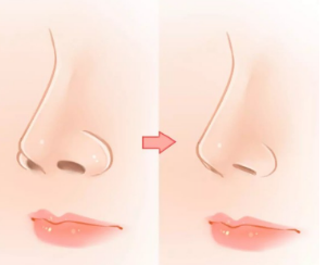 上海做鼻翼缩小整形手术多少钱 有效改善大鼻孔