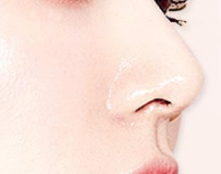 锦州斯美诺整形医院鼻翼缩小手术步骤 改变鼻型的外在美感
