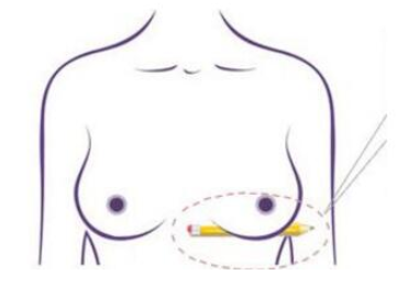 湖南常德瑞美整形医院乳房下垂矫正 回归以往的高挺丰满
