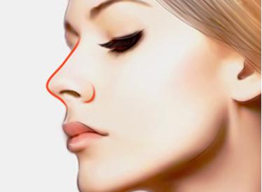 长沙艺星整形医院假体隆鼻手术需要多少钱 侧睡鼻子会歪吗