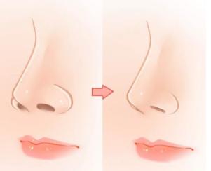 鼻翼整形效果对比图片 成都忠爱整形医院 让您告别大鼻子