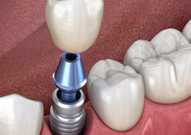 种植牙是怎么种植的 北京盖德口腔门诊部靠谱吗