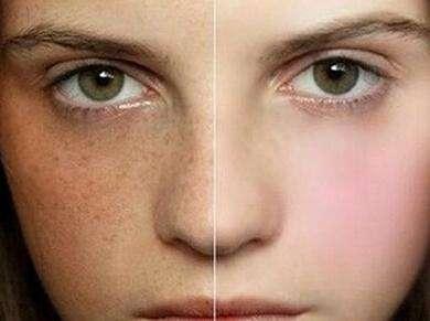 宁波协和俪人整形激光美容 美白嫩肤 打造Q弹肌肤