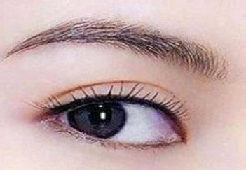切开双眼皮恢复期 西安凯韵整形医院切开双眼皮价格