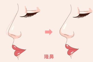 广州番禺更自信整形医院假体隆鼻 拥有高颜值的面容
