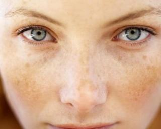 深圳整形医院激光去雀斑要做几次 让你的皮肤变得更好