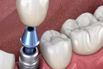 种植牙是怎么种植的 上海茂菊口腔医院靠谱吗