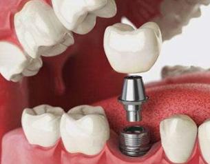 想做种植牙要多少钱 重庆齐美口腔门诊部种植牙的材料