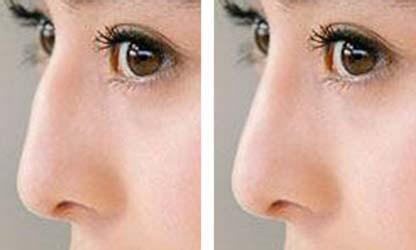 驼峰鼻矫正术图片 上海格娜美整形医院让您从此摆脱驼峰鼻