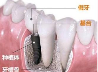 上海种植牙大概多少钱一颗 长期缺牙有哪些危害