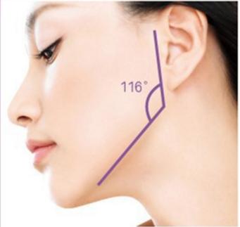下颌角磨骨案例 磨下颌角整形让您轻松拥有精致小V脸