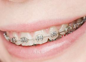牙齿矫正有年龄限制吗 沈阳米加口腔门诊部地址