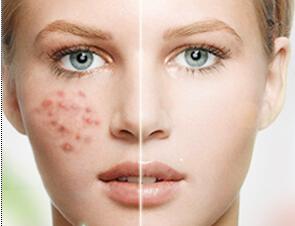 海南伊佳激光祛痘 让你凹凸不平的的痘痘肌恢复平整