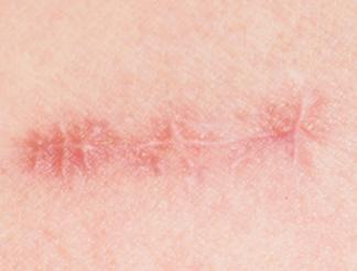 北京美联和谐点阵激光祛疤 淡化疤痕改善痕迹