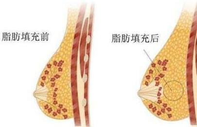 郴州曹家整形医院自体脂肪丰胸痛吗 营造丰满乳房