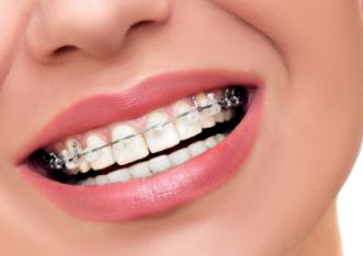 重庆瑞泰口腔医院牙齿矫正有年龄限制吗 哪些注意事项