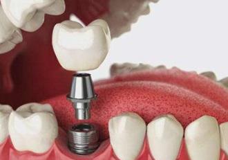 重庆皇仕口腔门诊部种植牙的过程是怎样的 种植牙有4大好处