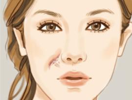 济南做激光祛疤多少钱 祛疤干净吗
