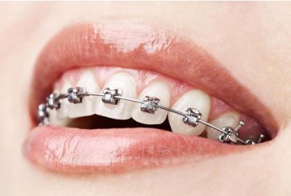 成人可以做牙齿矫正吗 整齐的牙齿 有效提升您的形象