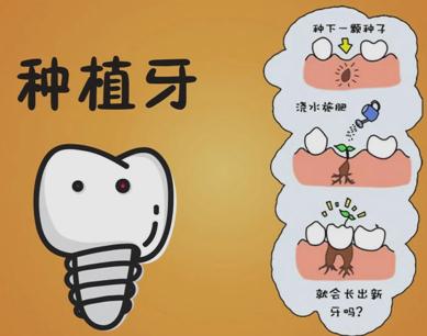 北京种植牙多少钱一颗 牙齿种植分几个阶段