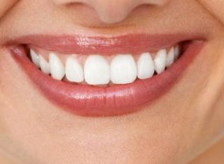 怎么改善地包天 唐山北极星地包天矫正让牙齿变得整齐美观