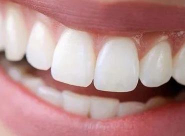 大连博大口腔烤瓷牙矫正术 让你的牙齿美观、健康、稳定
