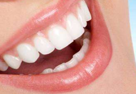 呼和浩特亚非烤瓷牙矫正 尽情展示你的笑容之美