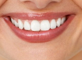 牙齿矫正的好处 苏州牙博士牙齿矫正让你的牙齿整齐又健康