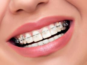 上海马泷齿科门诊部做种植牙怎么样 种植牙的简要过程