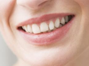 上海维佳康口腔医院烤瓷牙需要定时复诊吗 烤瓷牙注意事项