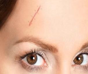 广州可玫尔艺美整形医院激光祛疤需要麻醉吗 多久恢复正常