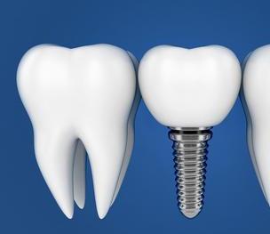 哈尔滨拜博口腔医院牙齿掉了多久可以种植牙 贵不贵