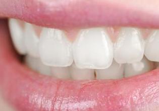 做种植牙哪家好 无锡佳士洁口腔门诊种植牙材料