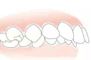 牙不齐怎么办 沈阳全好口腔门诊部牙齿矫正帮助你
